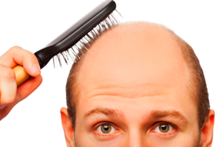 alopecia areata e calvizie soluzioni rimedi e come funziona dal punto di vista scientifico